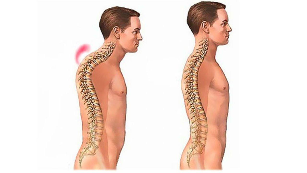 Сколиоз грудного отдела и шейного отдела
